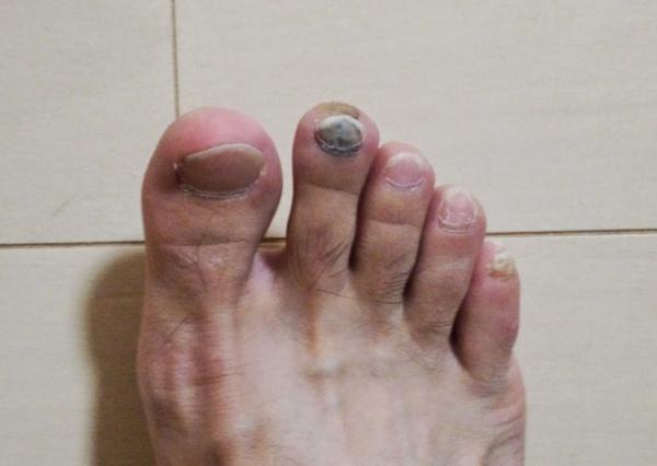 剥がれる 爪 内出血 爪がはがれそうです!!以前ぶつけた爪が黒くなっていたんですが、また
